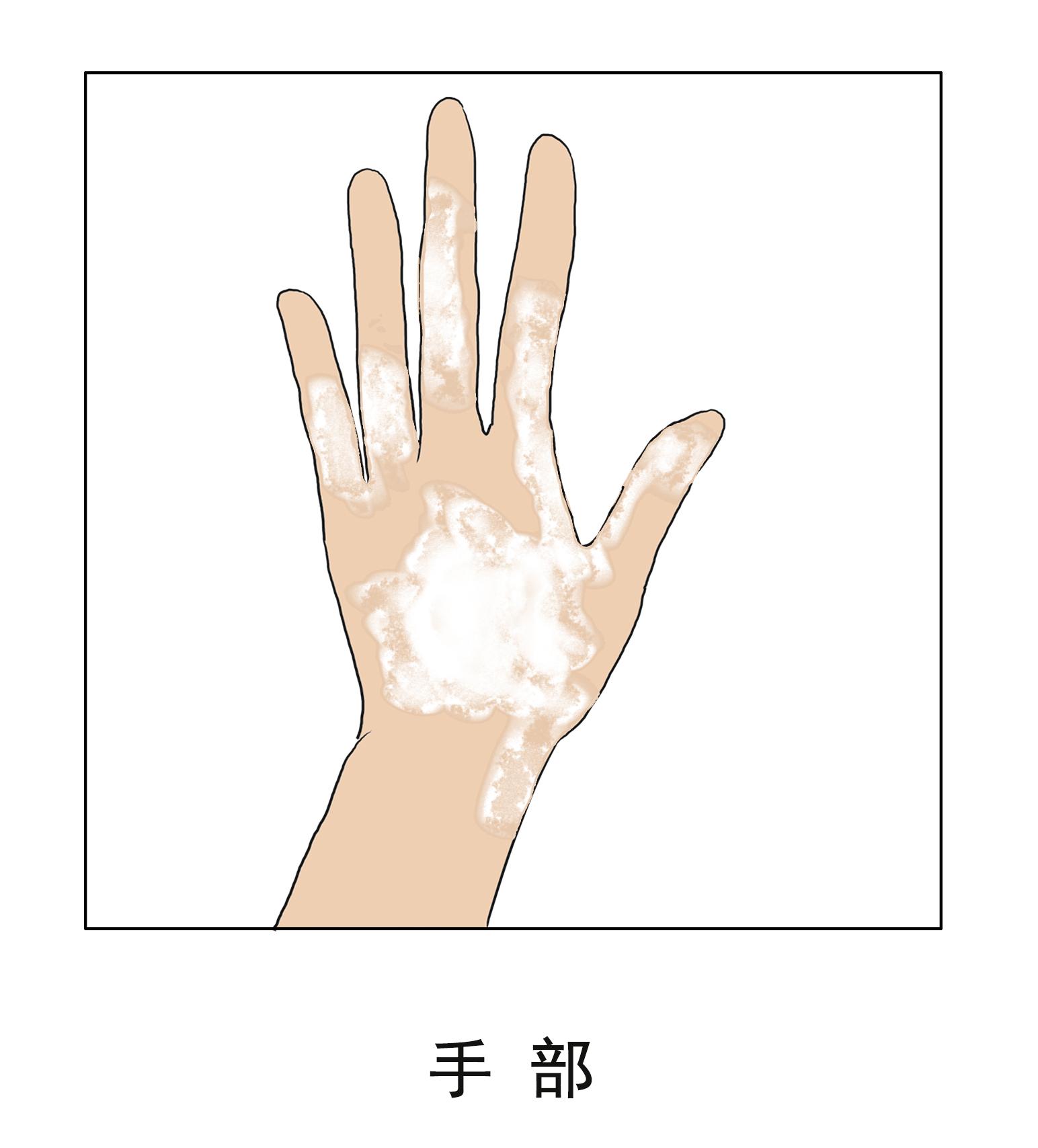 昆明白斑病医院哪家最好?手部白癜风怎么治疗好